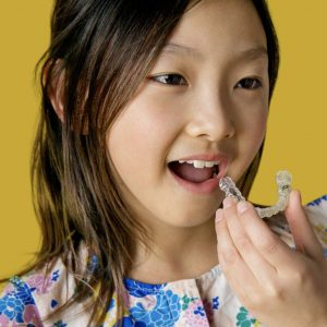 Invisalign Braces for Kids